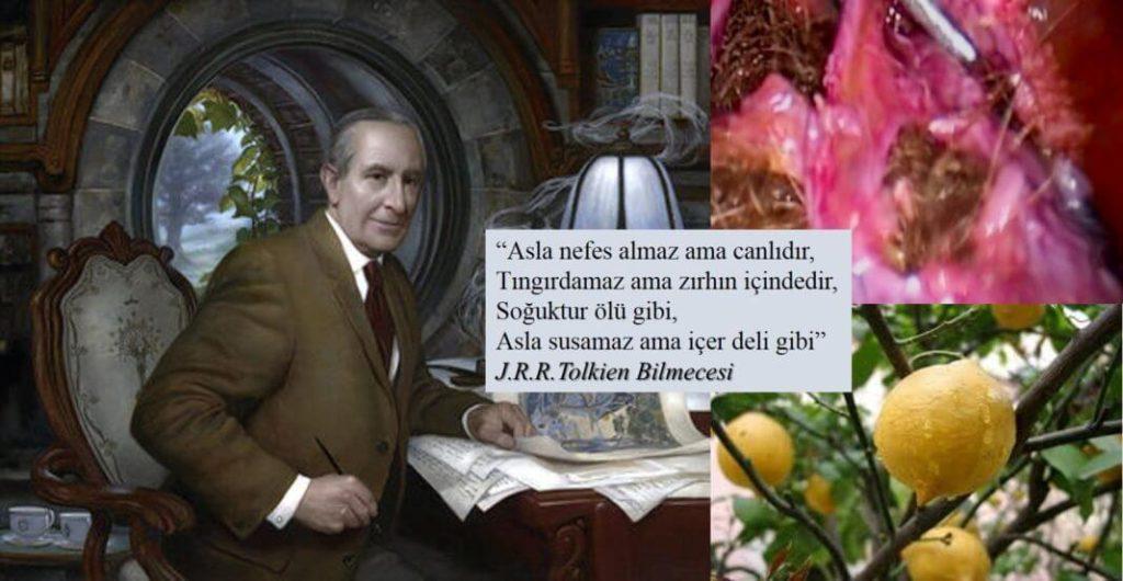 dermoid kist Prof. Dr. Süleyman Engin Akhan
