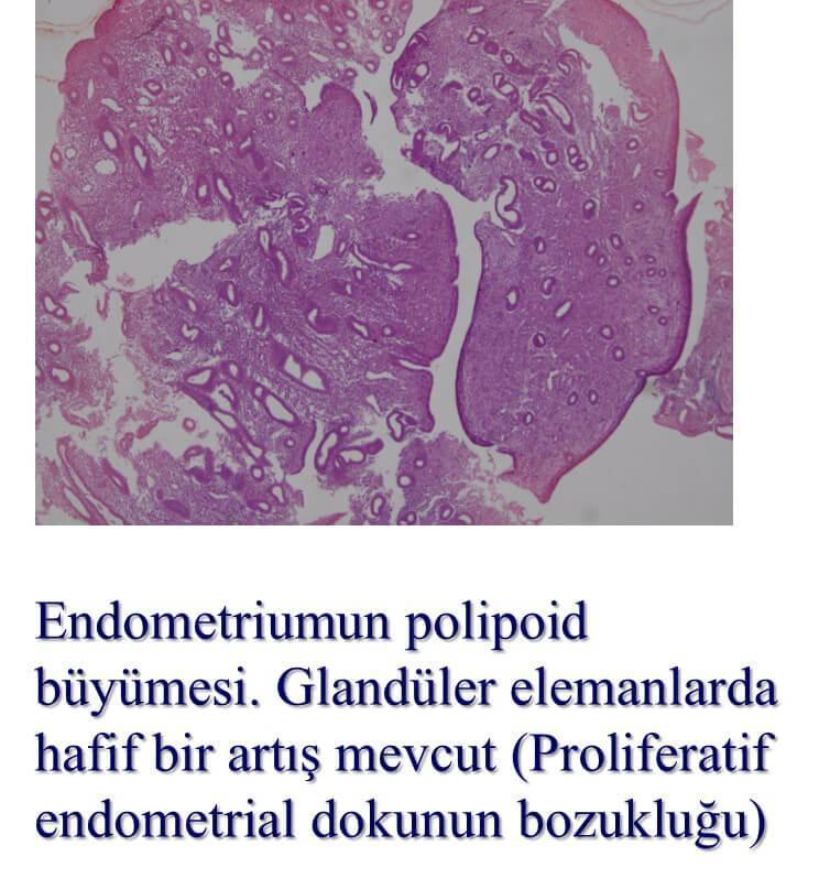 endometrial proliferasyon bozukluğu Prof. Dr. Süleyman Engin Akhan